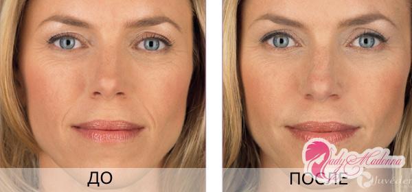 гиалуроновая кислота отзывы до и после