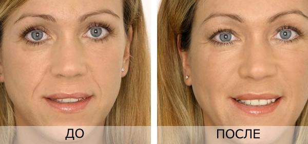 фото гиалуроновая кислота до и после