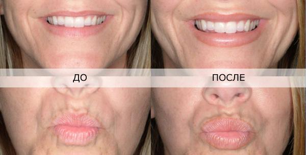 увеличение губ гиалуроновой кислотой фото до и после