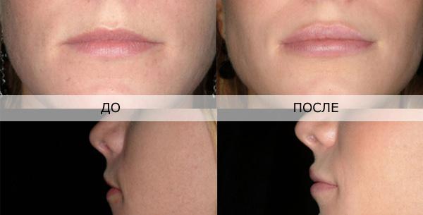 отзывы о увеличение губ гиалуроновой кислотой