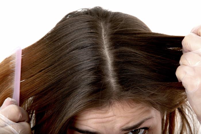 перхоть на длинных волосах