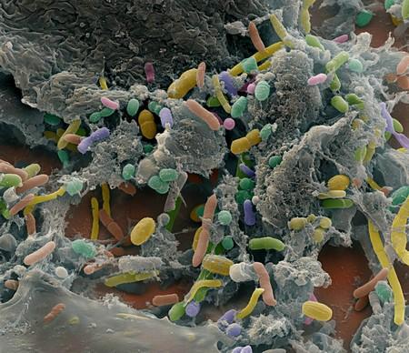 бактерия, которая помогает похудеть