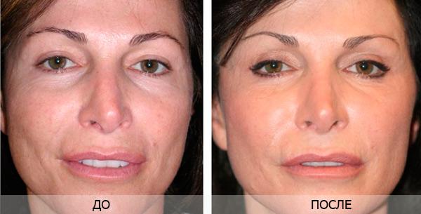 Лазерная шлифовка кожи лица и уход после процедуры