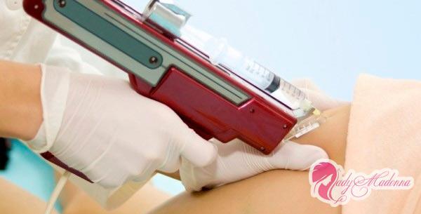 как делаеться мезотерапия лица