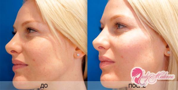 биоревитализация фото до и после процедуры