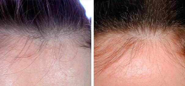 никотиновая кислота для волос фото до и после
