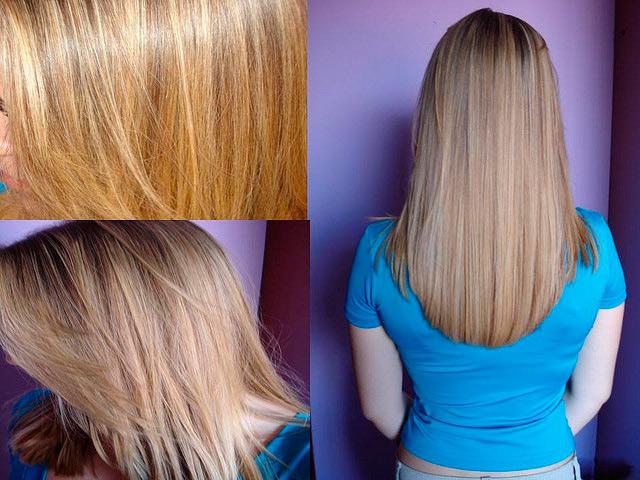 фото волос после каутеризации