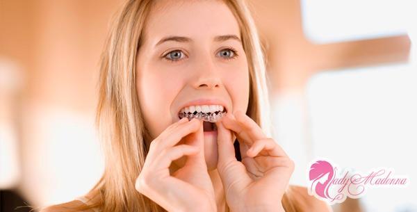 Как осветлить зубы дома: насколько эффективны отбеливающие полоски, пасты и карандаш