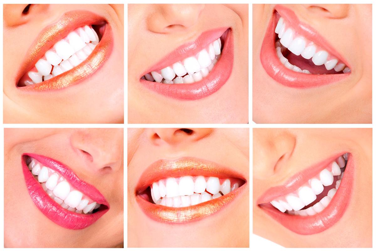 результат осветления зубов самостоятельно народными средствами