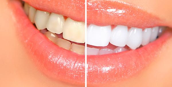 отбеливание зубов дома - фото до и после