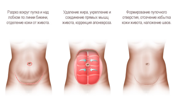 abdominoplasty1.jpg