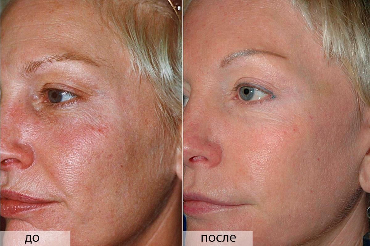 Ретиноевый пилинг - фото до и после