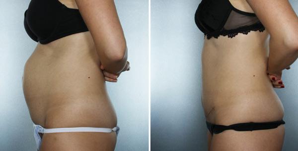 до и после операции по подтяжки живота