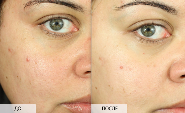 фото до и после салицилового пилинга
