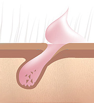 как проходит разрушение волос