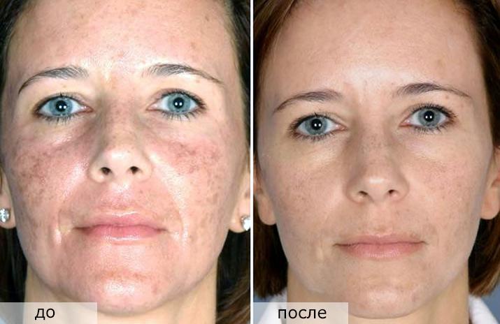 фото до и после Фракционного фототермолиза