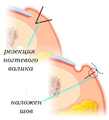 хирургическое исправление вросшего ногтя