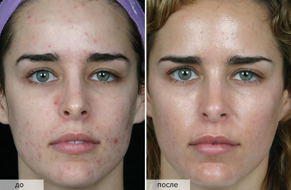 Атравматическая чистка кожи