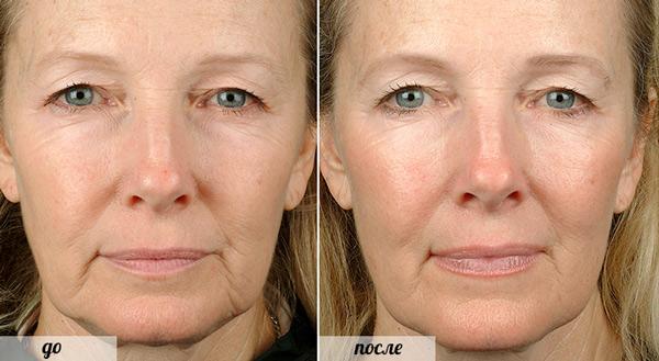 Термаж - фото до и после процедуры