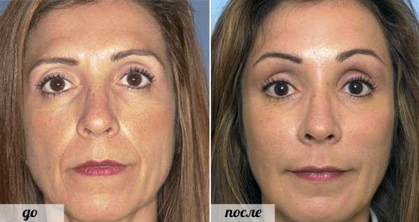 фото до и после Радиесс