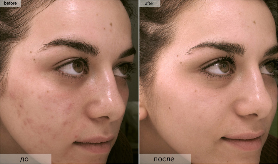 кожа до и после пилинга
