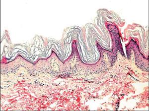 начало гиперкератоза на снимке электронным микроскопом