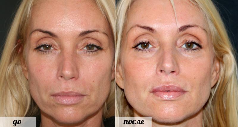 Радиесс - фото до и после