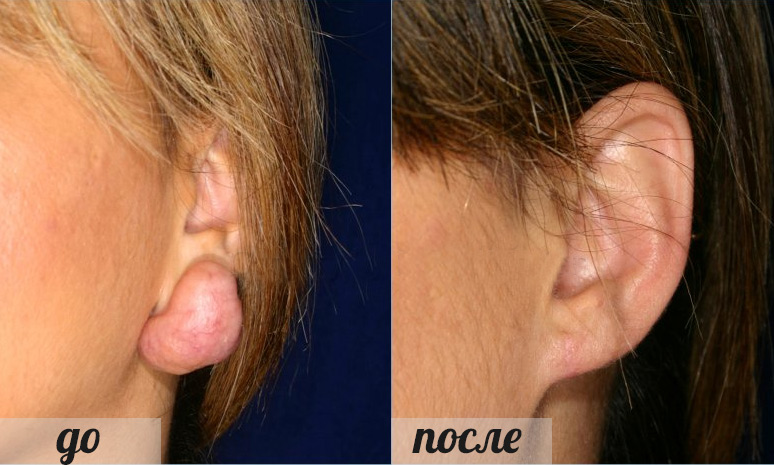 фото келридного рубца до и после лечения