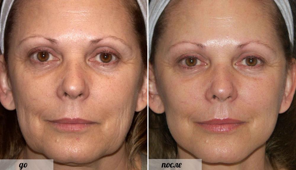 фото до и после биоармирования лица