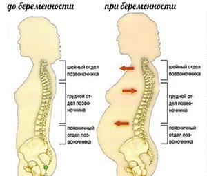 изменения в поясничном отделе при беременности