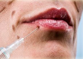 инъекции для уличения губ