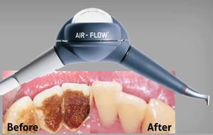 Система Air flow для чистки зубов