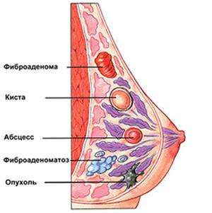 как выглдит фиброаденома