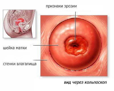Эрозия шейки при беременности