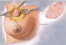 удаление доброкачественной опухоли