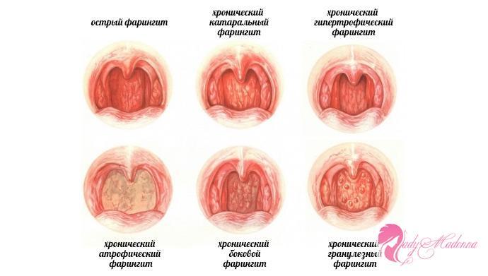 симптомы различных видов фарингита
