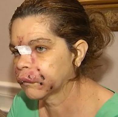 осложнения после уколов ботокс