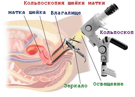 диагностика дисплазии(ЦИН)
