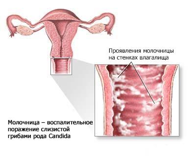 Во время беременности при молочнице