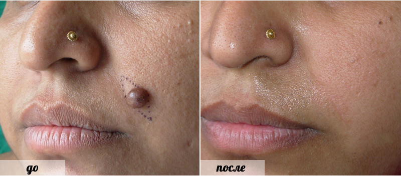 Плоские бородавки на лице лечение и фото