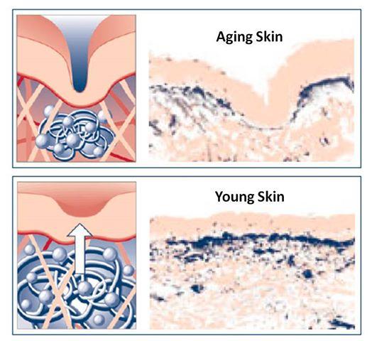 как действует гиалуроновая кислота в коже