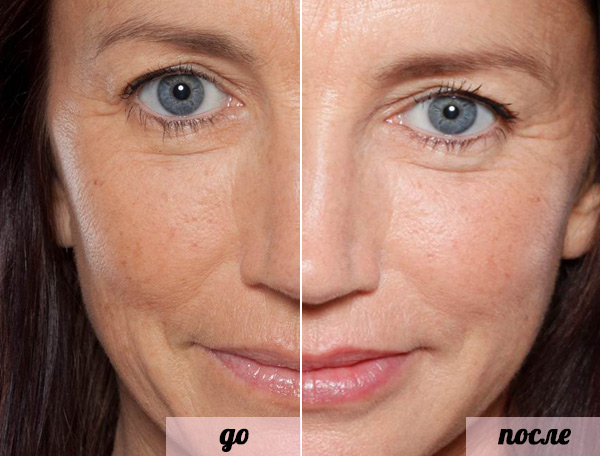 лицо до и после Teosyal