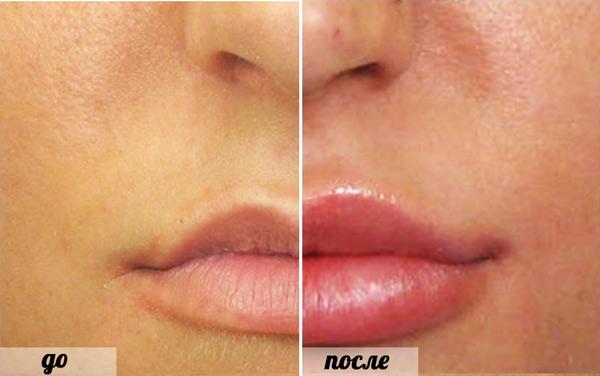 фото губ после увеличения