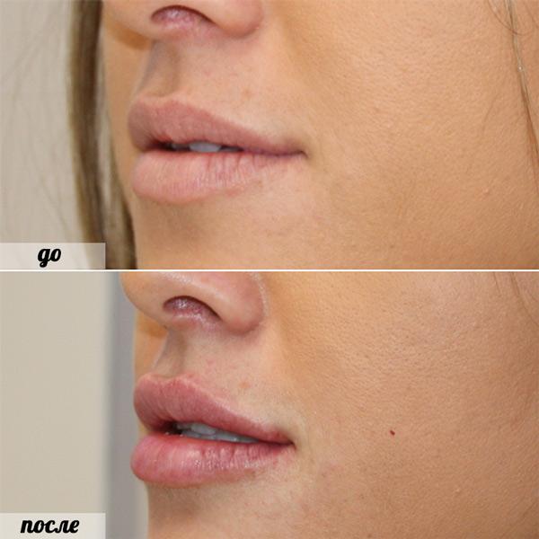 губы до и после пластики
