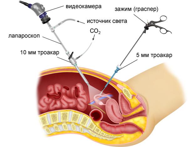 лапароскопия - самый надежный способ диагностики бесплодия у женщин
