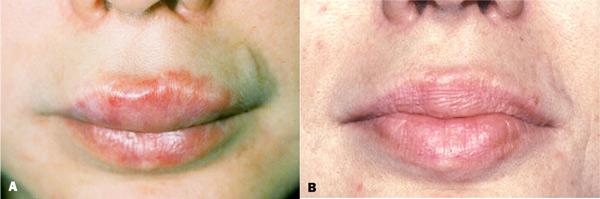 осложнения после контурной пластики губ