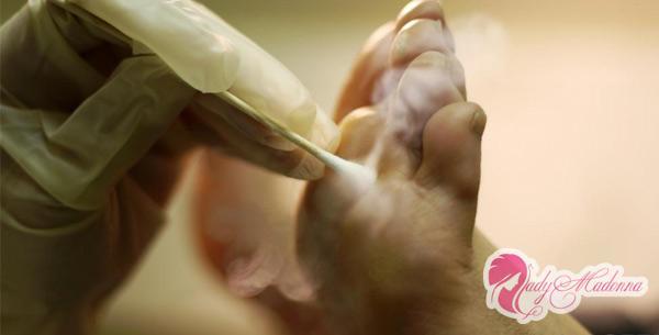 пример удаление бородавки на ноге азотом