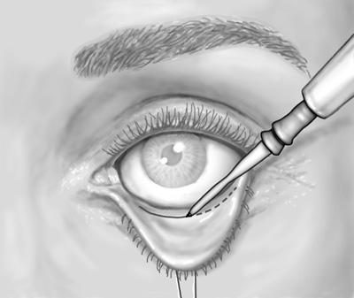 как проходит операция по удалению мешков под глазами