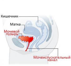 Как лечить цистит во время беременности