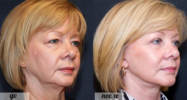 фото до и после золотого армирования